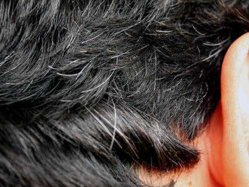 6 Home Remedies for Early Gray Hair