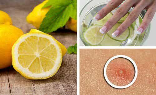6 Amazing Lemon Beauty Benefits