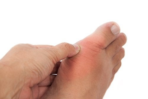Natural Treatments for Uric Acid and Gout
