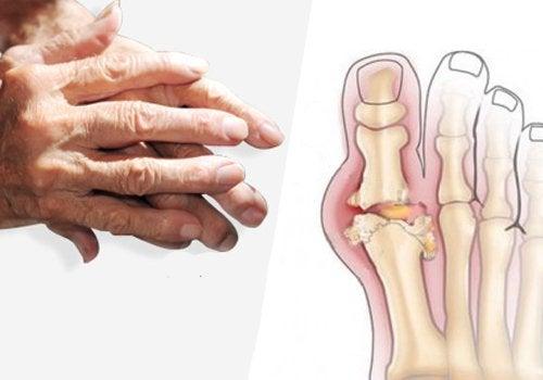 Niveltulehdus käsissä ja jaloissa