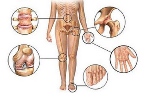 Different joints in the body