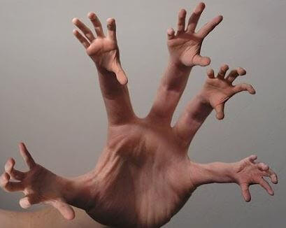 Alien hand syndrome.