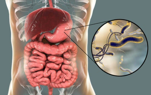 A diagram of the bacteria that cause bloating and diarrhea.