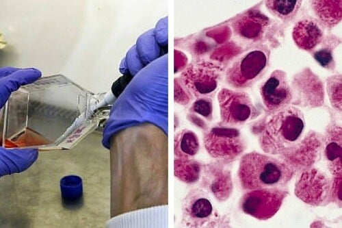 Scientists Discover Way To Make Leukemia Cells Destroy Themselves