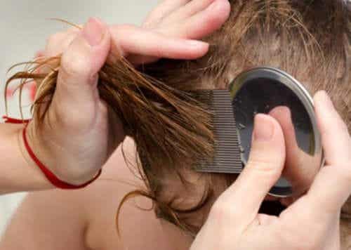 Seven Natural Ways to Get Rid of Lice and Nits