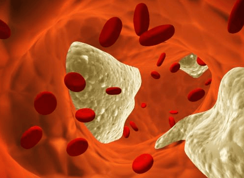 Cholesterol in blood