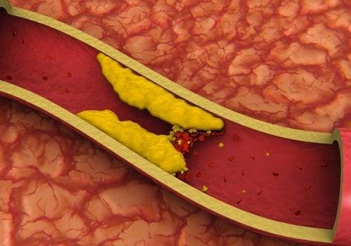 Tukkeutunut verisuoni