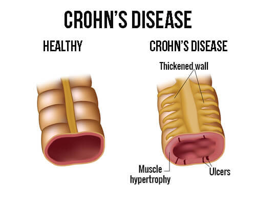 Treating Crohn's Disease with the Right Diet