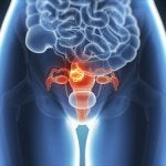 Risks and Symptoms of Endometriosis, a Silent Disease