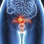 Risks and Symptoms of Endometriosis, a Silent Disease