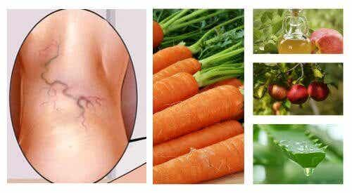 A Three-Ingredient Natural Varicose Vein Treatment