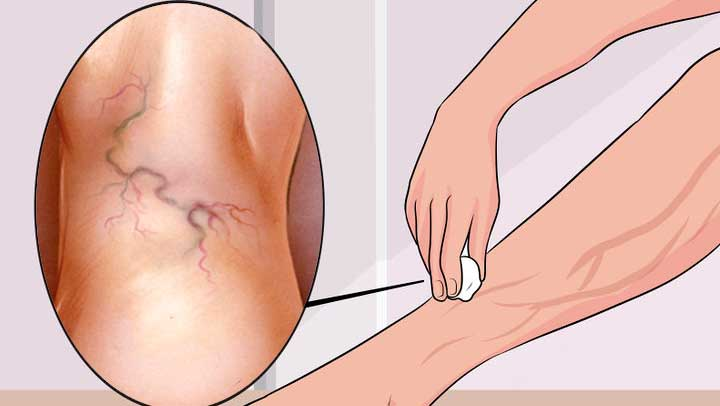 natural varicose vein treatment