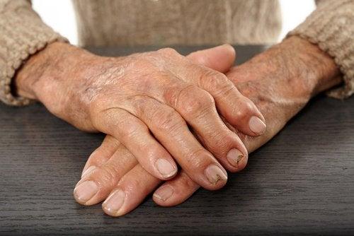 allevaites arthritis