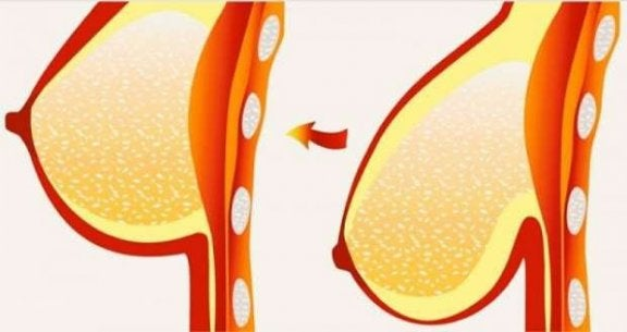 7d7e24767e 8 Tips and Treatments for Sagging Breasts - Step To Health