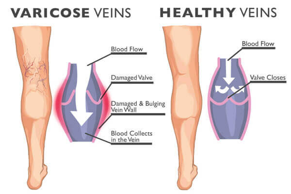 unhealthy veins compared to healthy veins