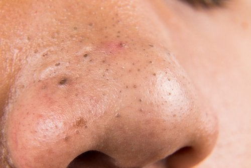5 Home Remedies for Blackheads