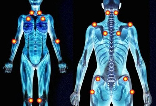5 Early Warning Signs of Fibromyalgia