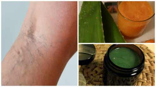Your Grandmother's Treatment for Varicose Veins