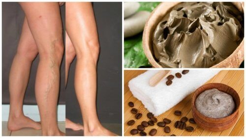 5 Natural Ways to Fight Varicose Veins