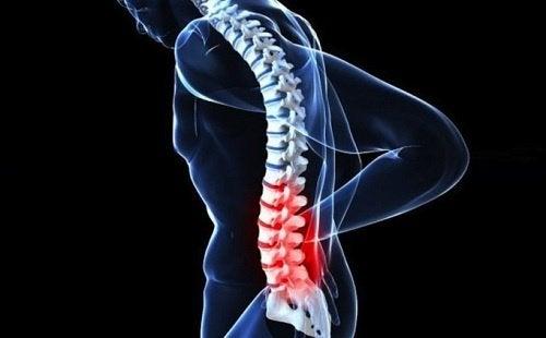 3 spinal cancer