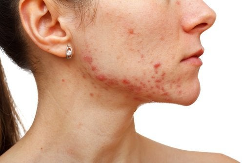 woman with rash