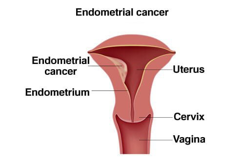 A picture of endometrial cancer