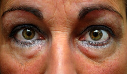 bags eyes