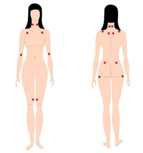 Points of pain in woman with early warning signs of fibromyalgia