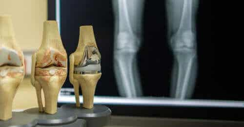 4 Things Your Knees Say About Your Health