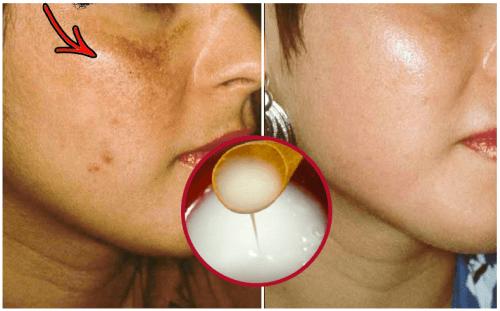 Lighten Skin Naturally with This DIY Cream