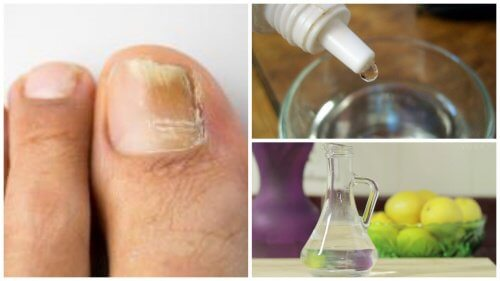Fight Nail Fungus