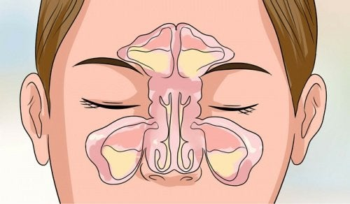 6 Tips to Get Relief From a Stuffy Nose