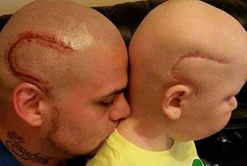 A Father Gets a Tattoo of His Son's Cancer Surgery Scar