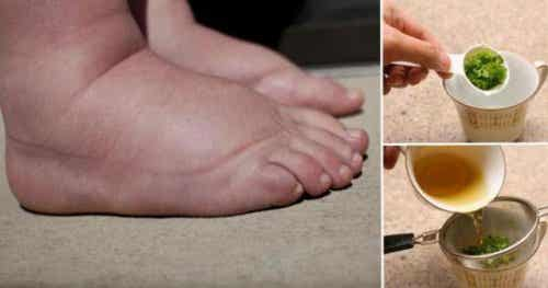 The Best Remedy to Relieve Swollen Feet