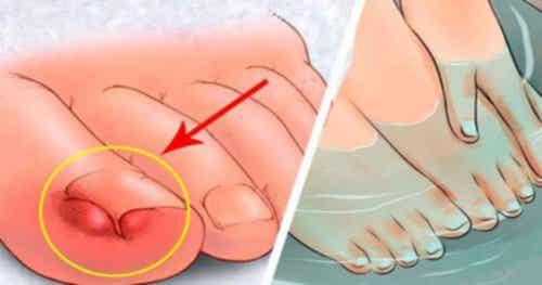 Ingrown toenails - six home remedies