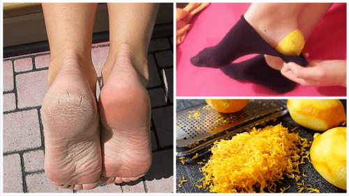 Use Lemon Peels to Heal Your Feet