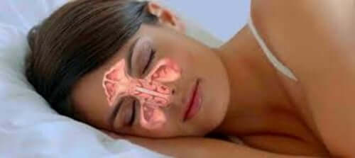 A woman sleeping with clear sinuses.