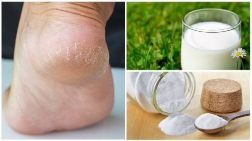 Softer Feet with Just Two Natural Ingredients