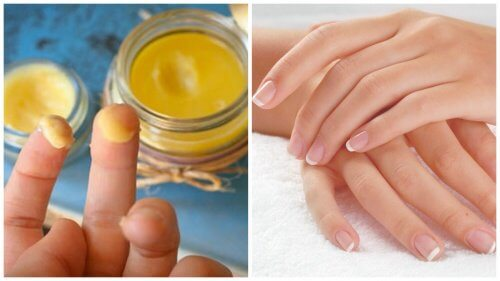 Hand Rejuvenation with a 100% Natural Treatment