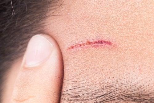 6-wounds-healing