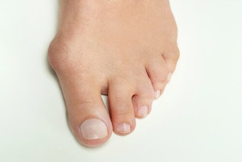 5 Home Remedies to Get Rid of Bunion Pain Fast