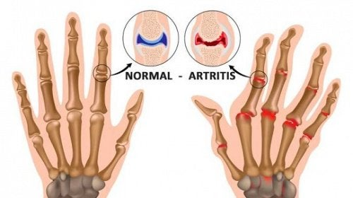 5 Things You Probably didn't Know about Arthritis