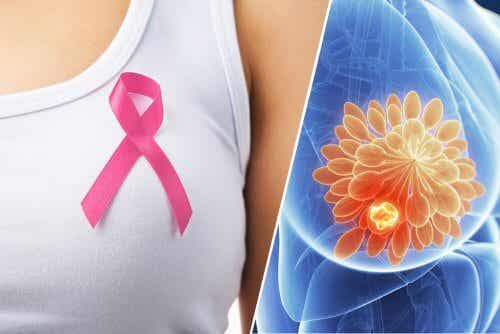 Detecting Breast Cancer Using a Pill