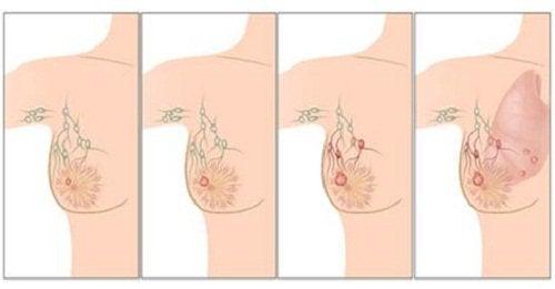 Rintasyövän leviäminen