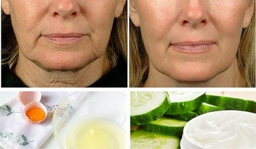 5 Home Remedies to Fight Facial Sagging