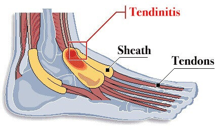 Tenosynovitis foot diagram