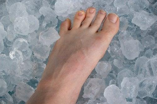 Jalka jäässä