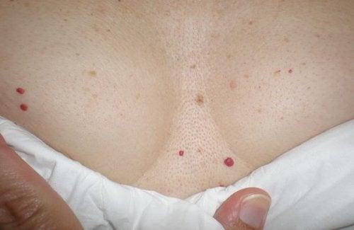 Red Spots on Skin: Should You Be Worried?