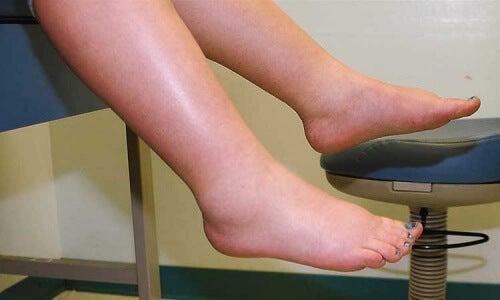 Turvonneet jalat