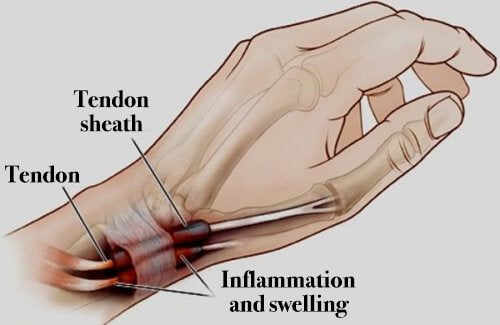 Image result for Tenosynovitis